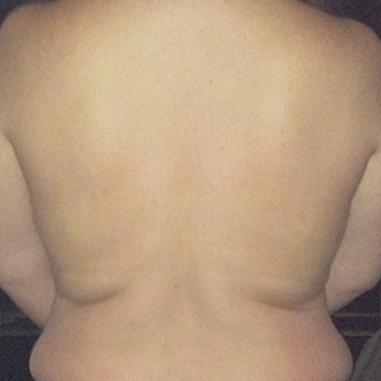 back-after