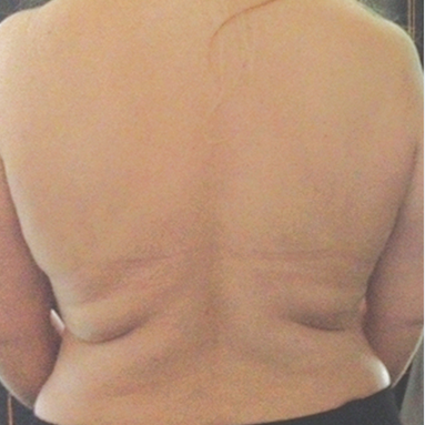 back-before