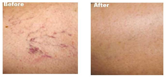 facial-vein-removal-denver